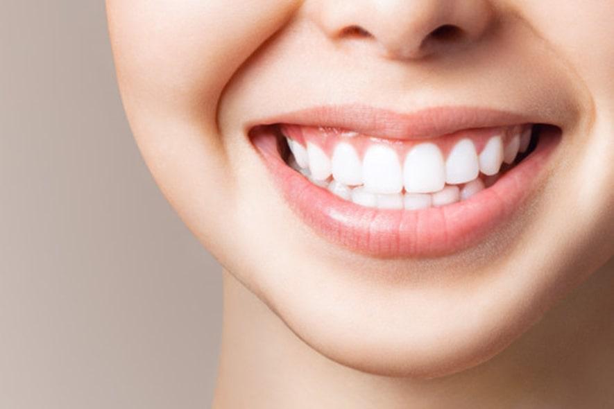 ¿Cuánto tiempo se debe dejar un blanqueamiento dental?