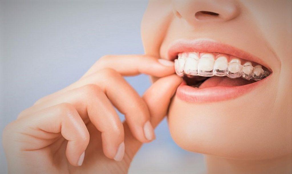 ¿Cómo funciona la ortodoncia invisible? Consigue dientes perfectos de la manera más estética