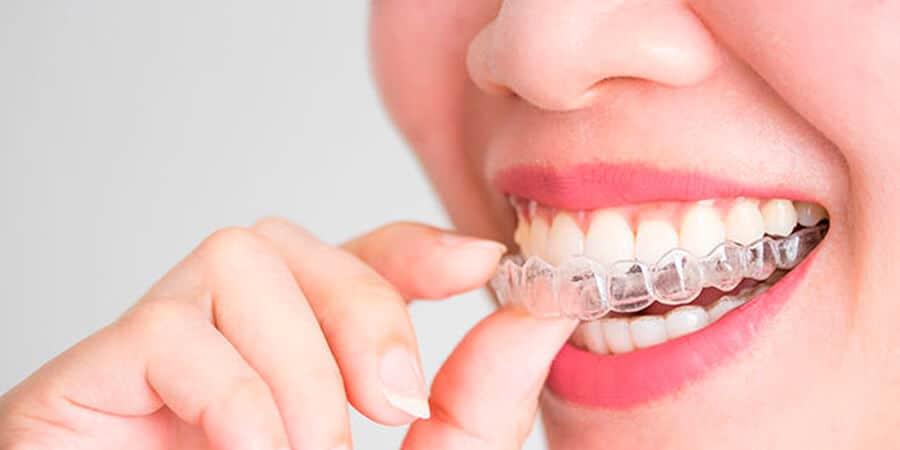 ¿Cuánto cuesta la ortodoncia invisible en Madrid? Llevar ortodoncia nunca ha sido tan sencillo