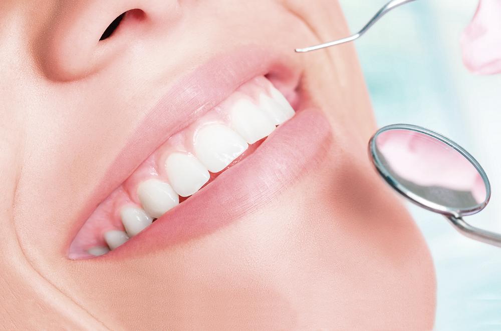 Preguntas Frecuentes sobre endodoncia